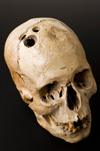 <p>Bronze Age skull from Jericho, Palestine, 2200-2000. [Science Museum, London]</p>