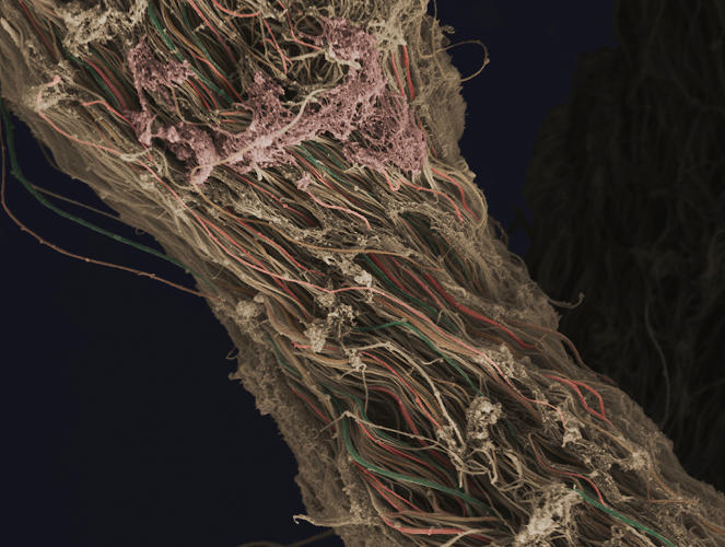 <p>A false-coloured scanning electron micrograph showing connective tissue removed from a human knee during arthroscopic surgery. Individual fibers of collagen can be distinguished and have been highlighted by the creator using a variety of colors. The horizontal field width of the image is 16 microns.</p>