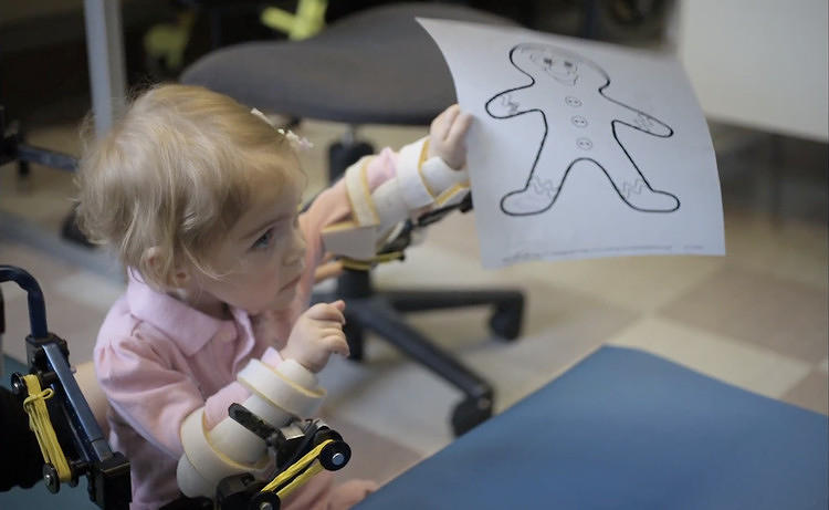 "<p><a href=&quot;http://www.fastcodesign.com/1670482/3-d-printed-magic-arms-let-a-toddler-hug-and-play#1&quot; target=&quot;_self&quot;><strong>3-D Printed ""Magic Arms"" Let A Toddler Hug And Play</strong></a></p>"