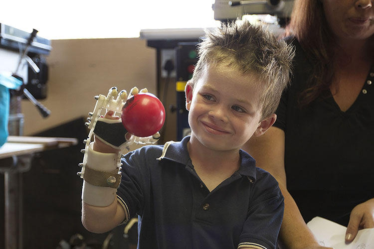 <p>The most promising aspect of these projects is their collaborative approach: Designer and user work together to develop a personalized prosthetic, built specifically for the user.</p>  <p>Above, a young boy is fitted with his new and fully articulate robotic hand. Developed by a Washington-based engineer in collaboration with a South African woodworker who had lost four fingers in an accident, the Robohand was prototyped using a Makerbot and some metal joints. The designers have tested it on two kids so far and see further applications, given how easy it is to calibrate the design to each user.</p>