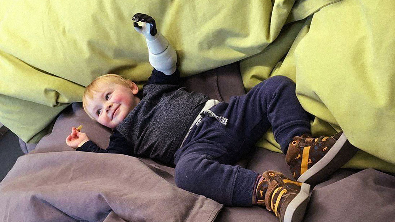 Thumbnail for This Father 3D Printed A Bionic Arm For His Infant Son, And Now Other Kids Can Have One