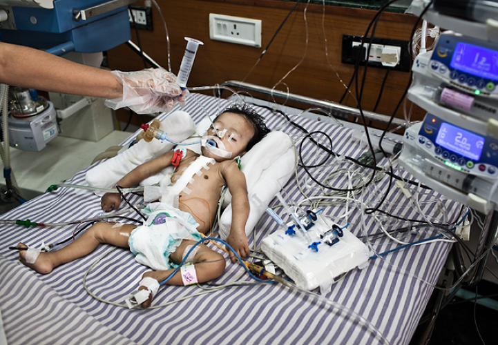 <p>A nurse feeds through a tube to 6 month old Baby Kaushik sleeps at the Intensive Therapy Unit of the Pediatric Section of the Narayana Hrudayalaya in Bangalore, Karnataka, India. Dr. Shetty conducted an open heart surgery on the child a day before.</p>
