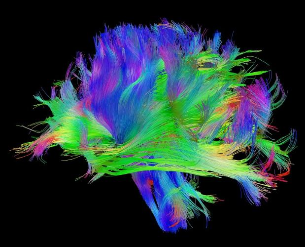 <p>By examining the brains of 1,200 volunteers who will spend 10 hours in the lab undergoing tests and scans, scientists hope to create a database of the structure and activity of a healthy brain, one that could be cross-referenced with data on psychological, cognitive, and genetic traits.</p>