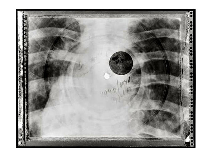 <p>The solution was homemade records ingeniously pressed on exposed X-Rays--called bone music.</p>