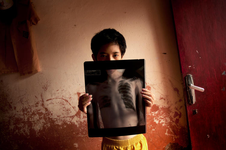 <p>Indonesia: &quot;Gilang holds an x-ray of his right lung, damaged as a result of Bronchiectasis—a condition when airways are so damaged they no longer clear out bacteria, often leading to repeated and serious lung infections.&quot;</p>