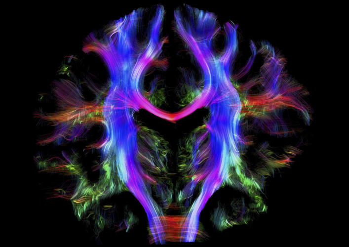 <p>Wiring the human brain. Alfred Anwander, Max Planck Institute for Human Cognitive and Brain Sciences</p>