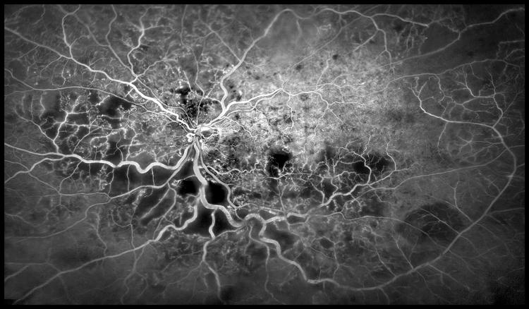 <p>Blood vessels in the eye. Kim Baxter, Cambridge University Hospitals NHS Foundation Trust</p>