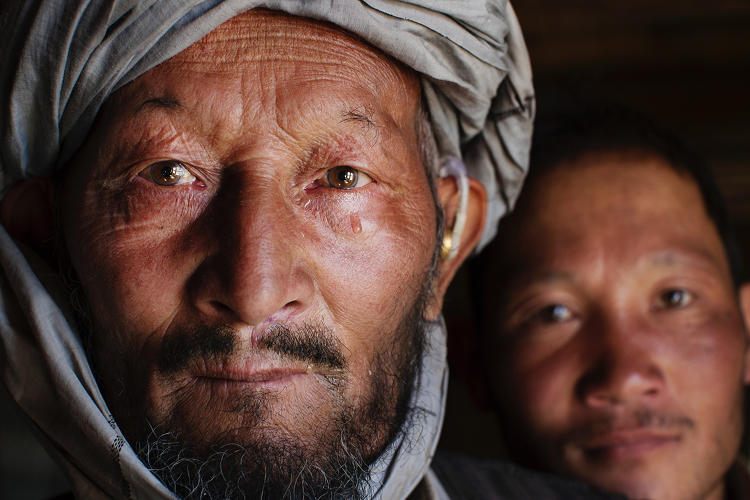 <p><strong>Mohammed Ali</strong> and his son, Yonus, 25,  are both in the early, treatable stages of Leprosy in the remote village of Yakawlang, Afghanistan.</p>