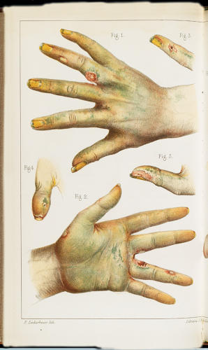<p>Illustration from a French medical journal in 1859 showing typical damage caused to hands by exposure to arsenical dyes. The skin is discolored, both as a result of the poison in the bloodstream and the staining effect of the green dye itself. Characteristic skin lesions, small keratoses, and patchy areas of hyperpigmentation are evident.</p>